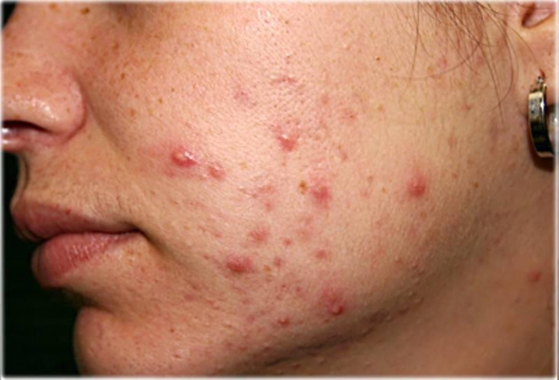 acne giovanile